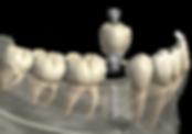 Клиника семейной стоматологии Дент Хаус Одесса, Dent House, Odessa, Стоматолог в Одессе