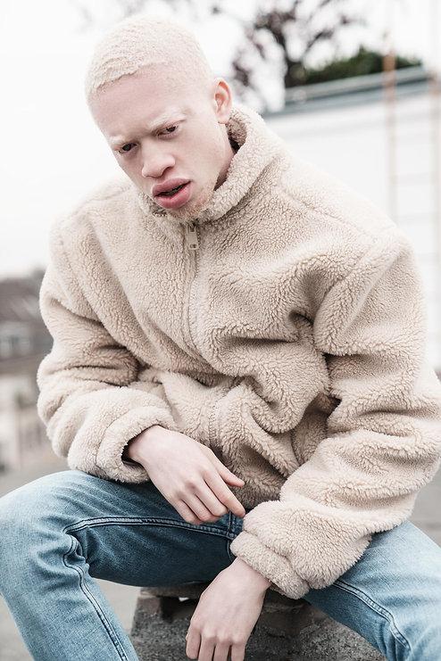 malemodel-model-albino-köln-shooting-fot