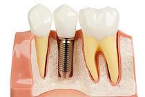 dental Crown bridge implant cerec denture false teeth ceramic porcelain gold