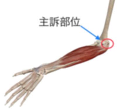 肘関節.jpg