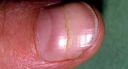 Nail Changes.jpg