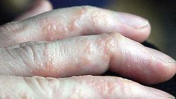 Hand Dermatitis.jpg