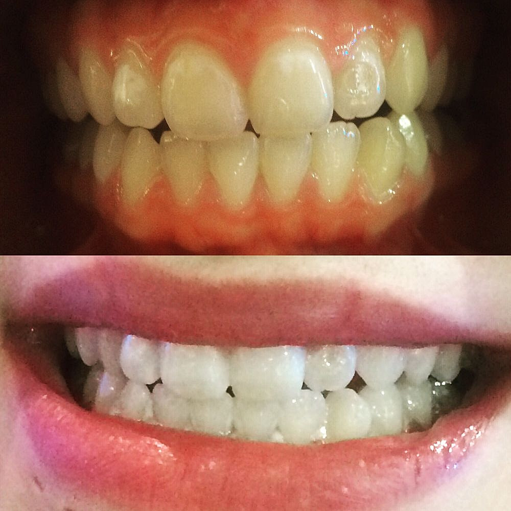 Global Whitening's treatment: before and after
