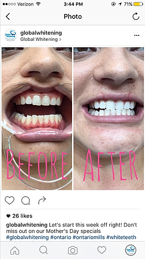 Global Whitening's Reviews with before and after