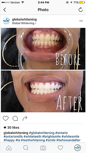 Global Whitening's treatemnt with before and after