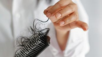 左搵右搵點生髮?隆重呈獻:女性生髮方法大全