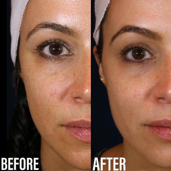 before-after-photos-laser-skin-rejuvinat