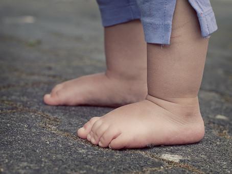 O exagero no tamanho dos dedos do pé de crianças – Como tratar?