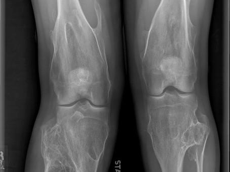 Osteocondromatose nas crianças: conheça o tratamento.