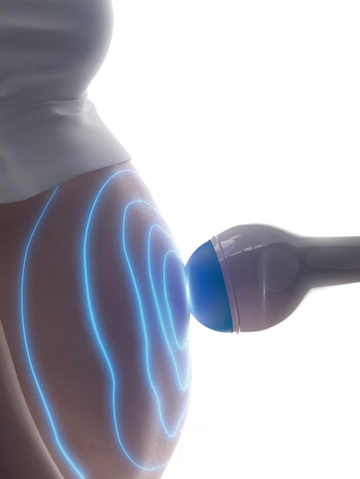 Ultrasssonografia