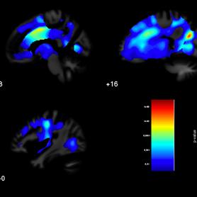 Development of New Neuropsychology Tools
