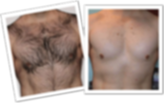 men-hair-chest-before-after-1.png