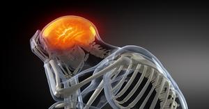 Oseopath Migraine