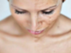 Chemical-peel-1.jpg