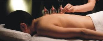 cupping2.jpeg