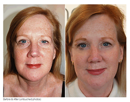 FaceLift Massage Somerville NJ