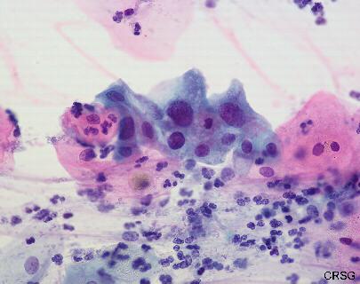 Polskie Towarzystwo Ginekologiczne Rekomendacje Pobieranie rozmazów cytologicznych