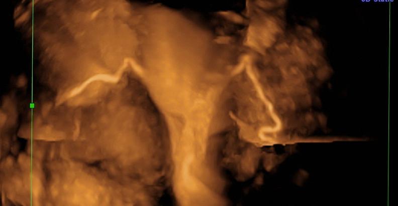 ExEm Foam® Nowoczesna diagnostyka niepłodności  METODA PIANKOWA HyFoSy