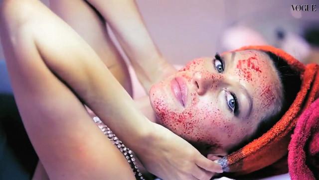 Vampire Lifting: el tratamiento de las celebrities!