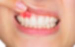18-TRDEN_gingivitis_blogimage-1-1080x675