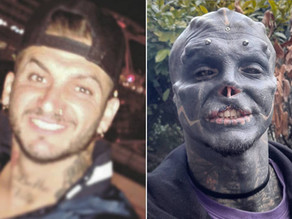 """White Male Turns Himself Into """"Black Alien"""" By Removing Nose And Top Lip"""