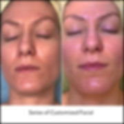 Series of Customized Facial