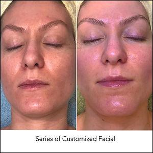 Series of Customized Facial