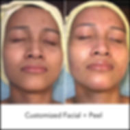 Customized Facial + Peel