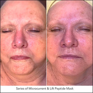 Series of Microcurrent & Lift Peptide Mask