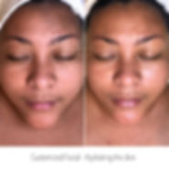Customized Facial