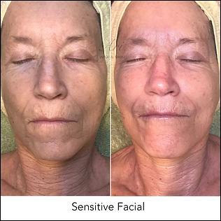 Sensitive Facial