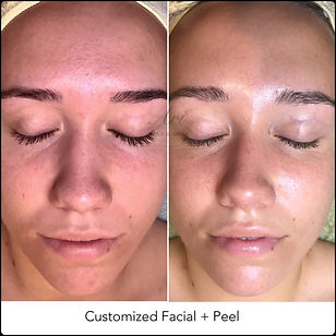 Customized Facial + Peel