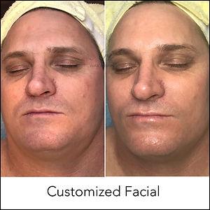 Customized Facial