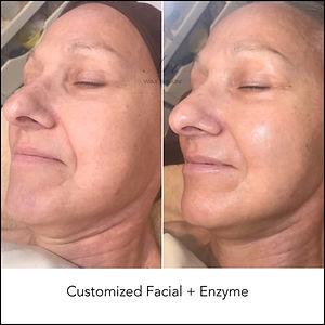 Customized Facial + Enzyme
