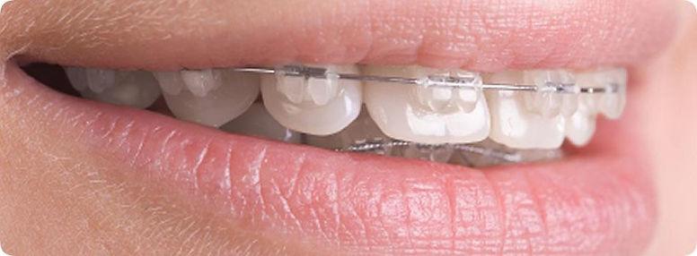 Ortodontia Ageclin Odonto Center