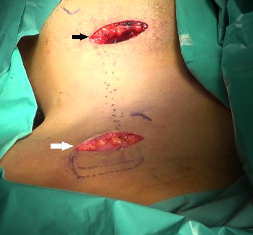 Θέσεις χειρουργικών τομών