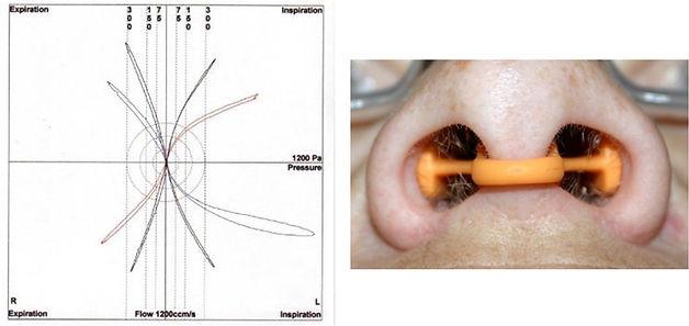 nasal valve dilator.jpg