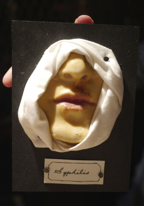 This is known as a Wax Moulage showing Secondary Syphilis of the Face, handmade by Nicole Antebi