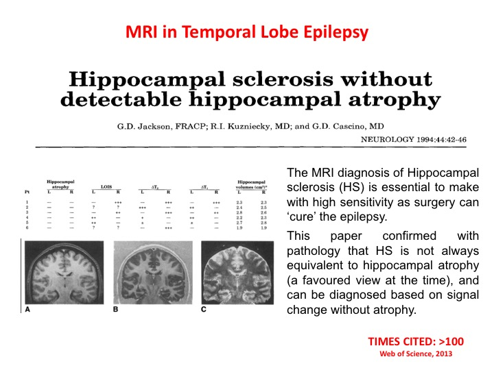 Hippocampal sclerosis