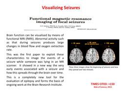 Visualising seizures