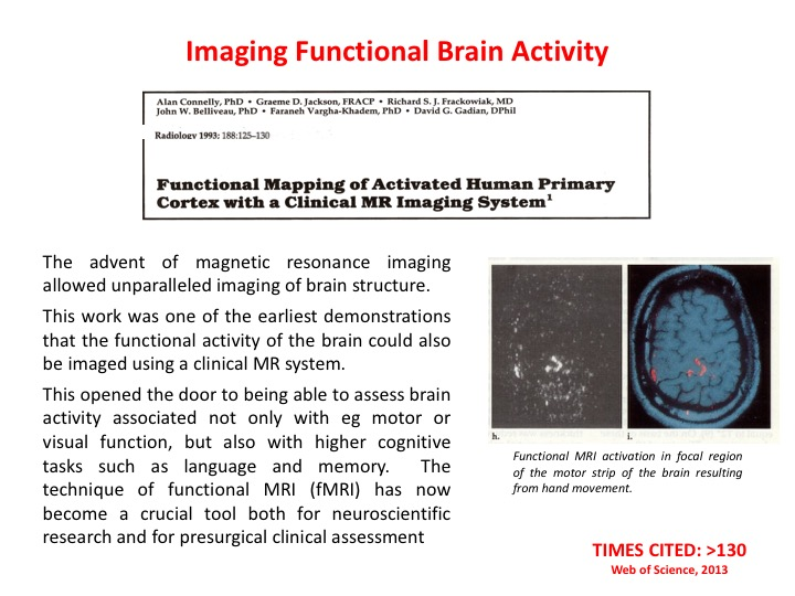 Functional brain imaging
