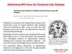 MRI scans in TLE