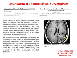 classifying cortical malformation