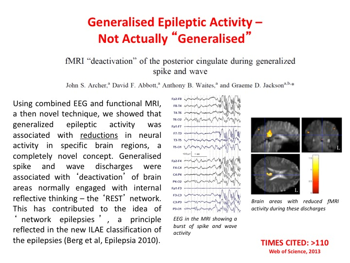 Generalised epilepsy activity