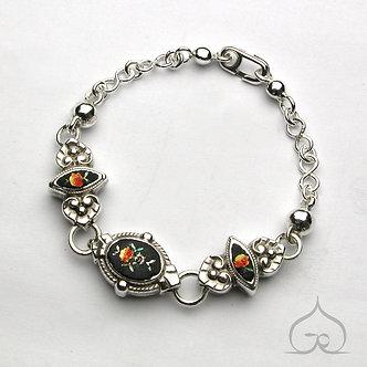 restauration bracelet