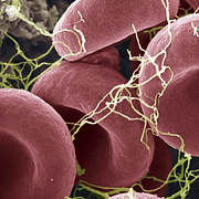Blood clot_edited_square.png