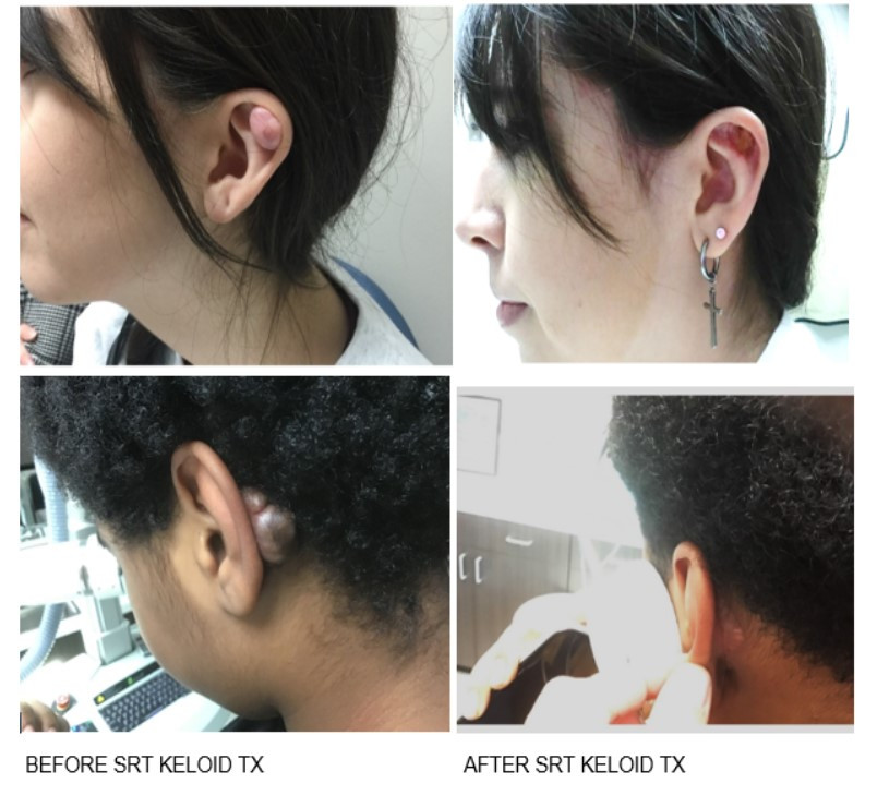 KELOID-B4-AND-AFTER-SRT-2.jpg