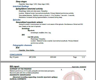 New release of SCORE EEG® Premium Edition