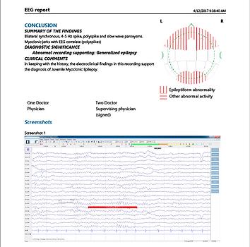 Standardized EEG report