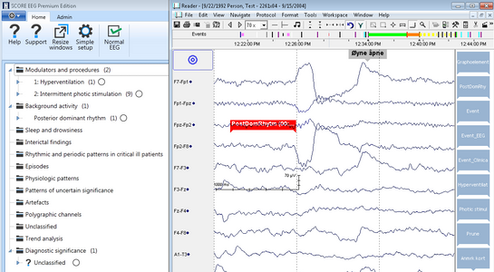 EEG waves, EEG spikes, EEG reporting software, EEG reader